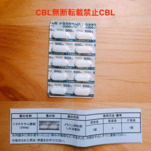 ピコレーザーシミ取りトラネキサム酸